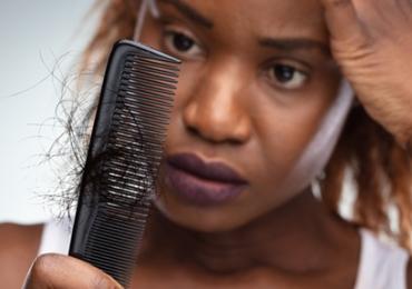 Traction Alopecia Treatment London – LHTC